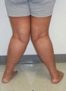 βλαισογονία Medica Feet